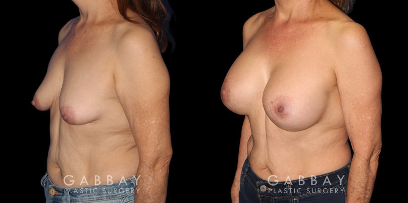 Patient 16 3/4th Left Side View Breast Augmentation w/ Mastopexy - Silicone Gabbay Plastic Surgery