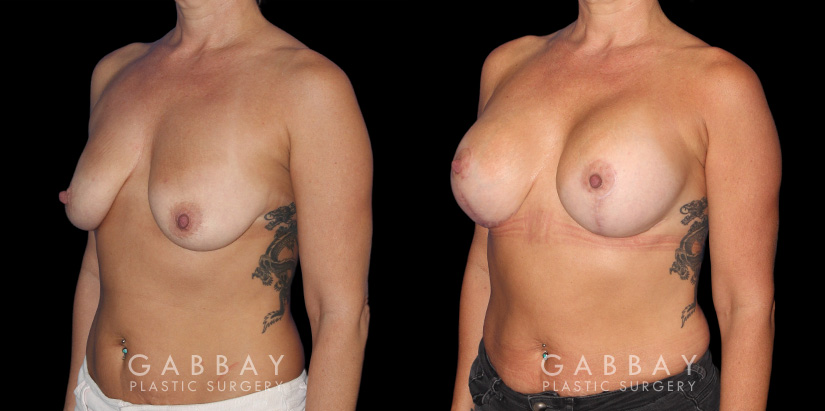 Patient 17 3/4th Left Side View Wise Mastopexy with Silicone Breast Implants Gabbay Plastic Surgery