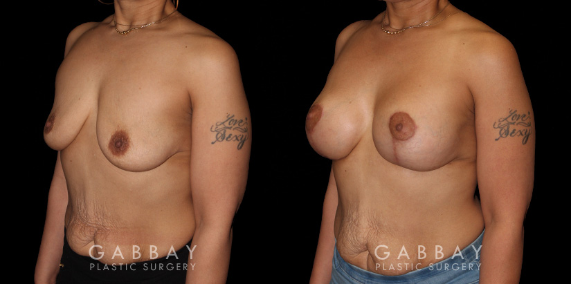 Patient 18 3/4th Left Side View Breast Augmentation - Silicone & Lift Gabbay Plastic Surgery