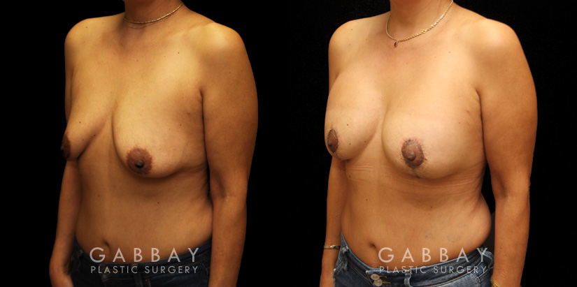 Patient 19 3/4th Left Side View Breast Aug/Pexy Gabbay Plastic Surgery