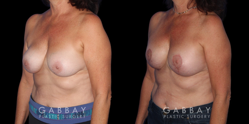 Patient 22 3/4th Left Side View R&R + Breast Lift Gabbay Plastic Surgery