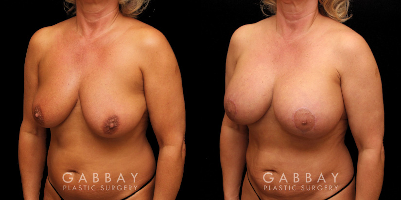 Patient 23 3/4th Left Side View Breast Aug/Pexy with Liposcution and J-plasma to the Full Abdomen and Upper Back Bra Roll Gabbay Plastic Surgery