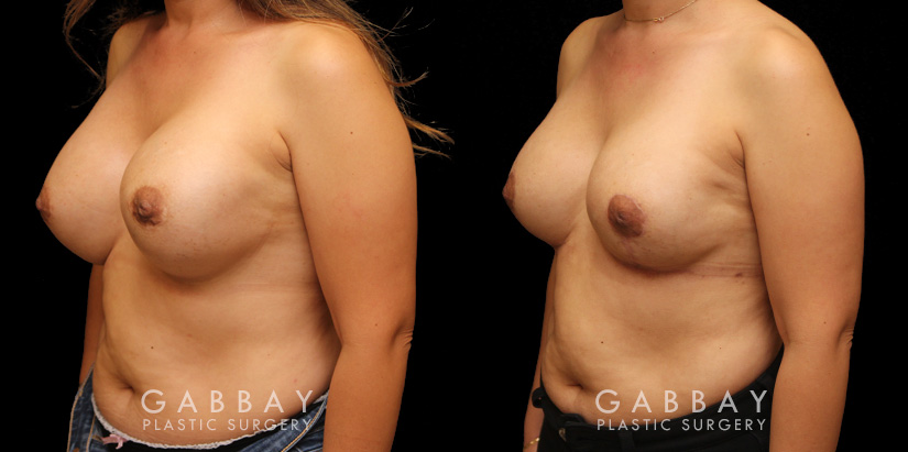 Patient 12 3/4th Left Side View Augpexy Gabbay Plastic Surgery