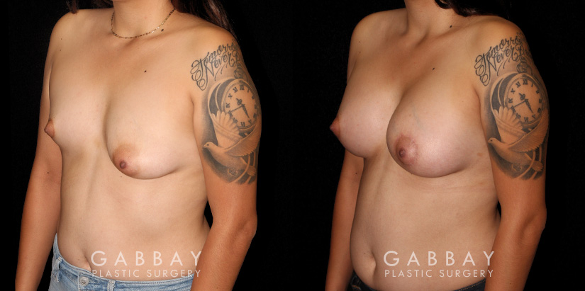 Patient 13 3/4th Left Side View Augpexy Gabbay Plastic Surgery