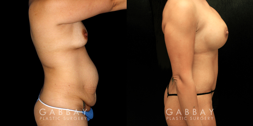 Patient 01 Right Side View Mommy Makeover Gabbay Plastic Surgery