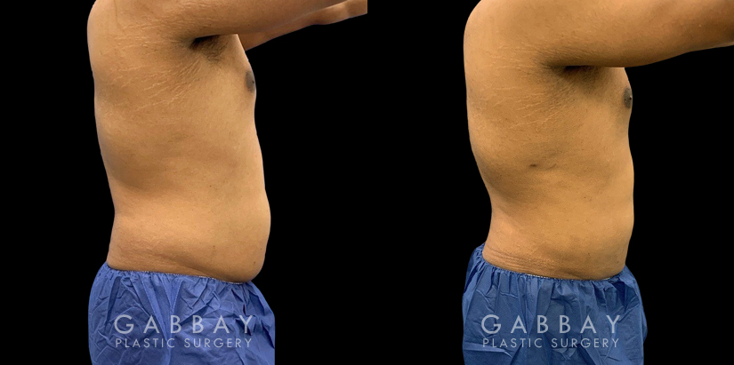 Patient 03 Right Side View Lipo Male Gabbay Plastic Surgery