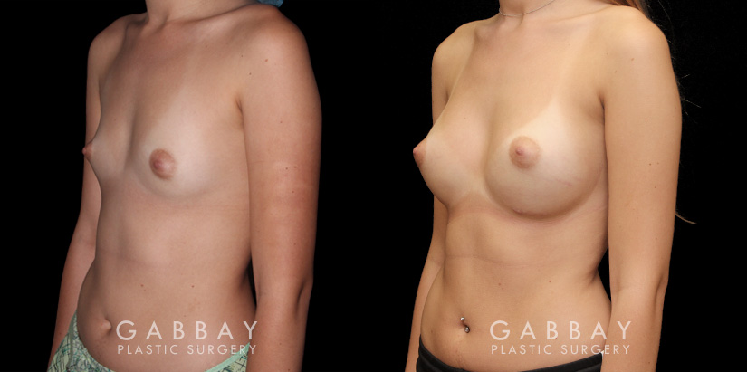 Patient 06 3/4th Left Side View Breast Augmentation Silicone Implants Gabbay Plastic Surgery