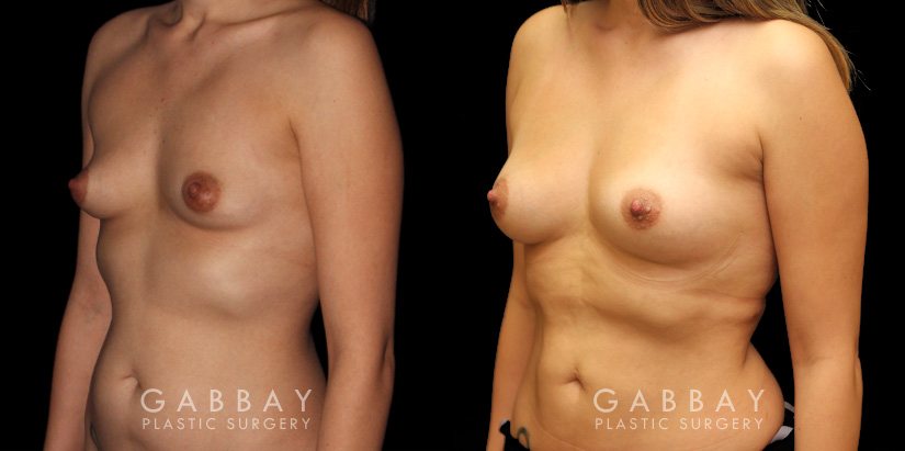 Patient 01 3/4th Left Side View Breast Fat Grafting Gabbay Plastic Surgery