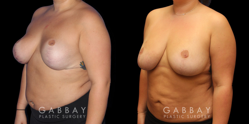 Patient 02 3/4th Left Side View Breast Fat Grafting Gabbay Plastic Surgery
