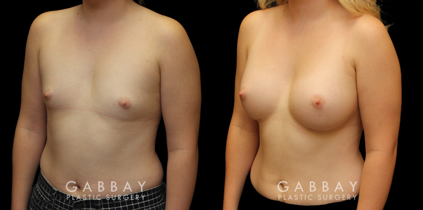 Patient 10 3/4th Left Side View Breast Augmentation with Silicone Implants Gabbay Plastic Surgery