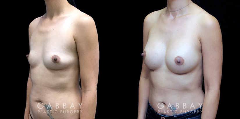 Patient 03 3/4th Left Side View Breast Augmentation Silicone Implants Gabbay Plastic Surgery