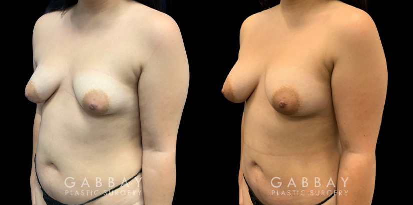 Patient 04 3/4th Left Side View Breast Fat Grafting Gabbay Plastic Surgery