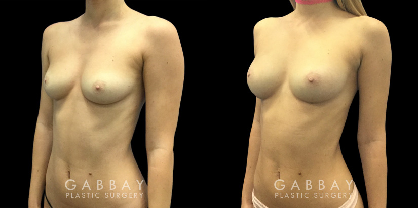 Patient 06 3/4th Left Side View Breast Fat Grafting Gabbay Plastic Surgery