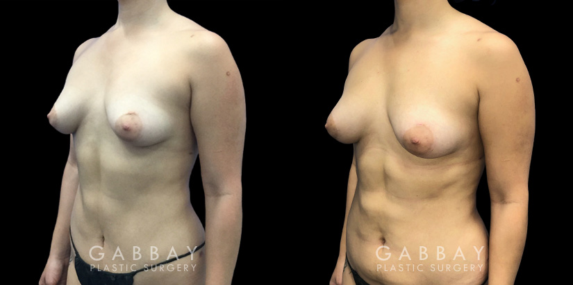 Patient 09 3/4th Left Side View Breast Fat Grafting Gabbay Plastic Surgery