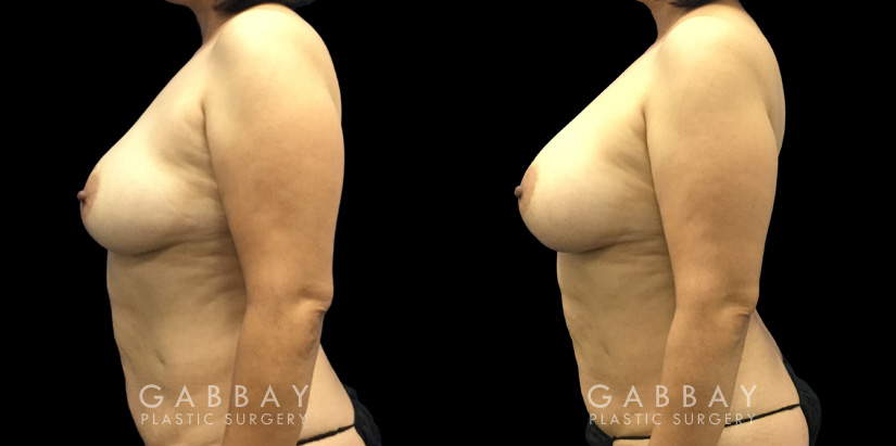 Patient 10 Left Side View Breast Fat Grafting Gabbay Plastic Surgery