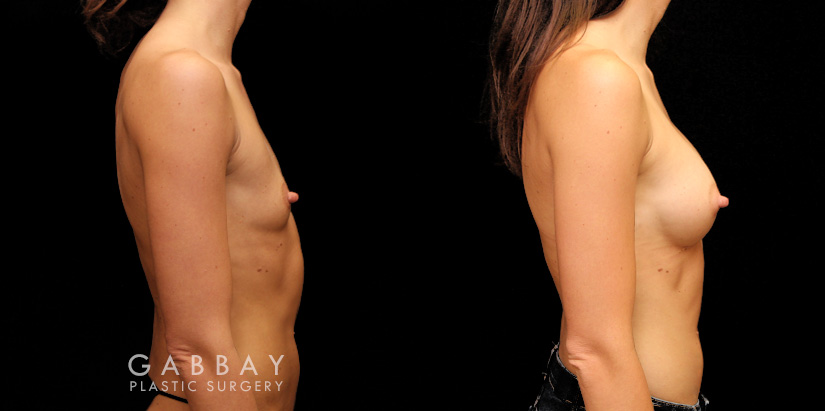 Patient 02 Right Side View Breast Augmentation Silicone Implants Gabbay Plastic Surgery