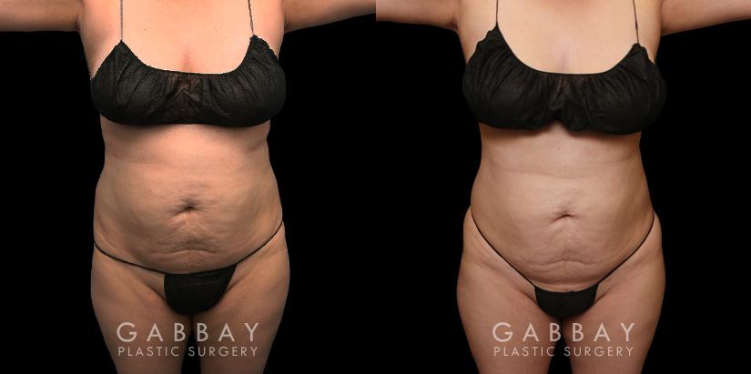 Patient 05 Front View Abdomen Lipo Gabbay Plastic Surgery