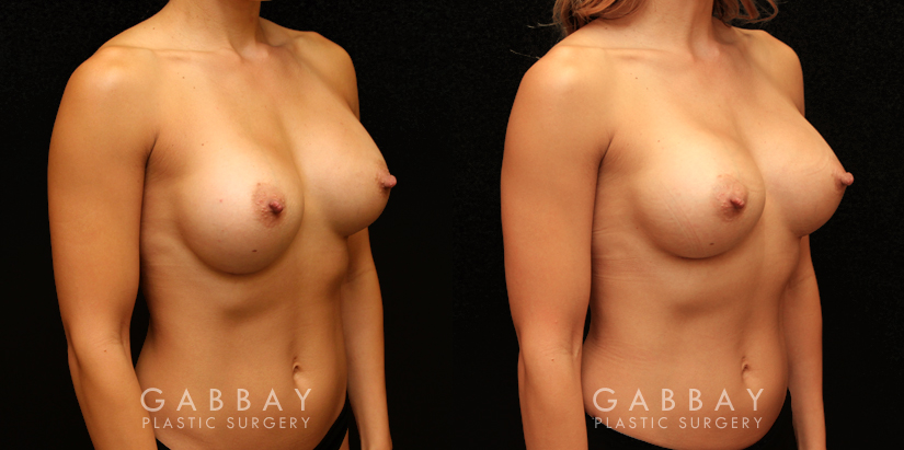 Patient 01 3/4th Right Side View Breast Revision Gabbay Plastic Surgery