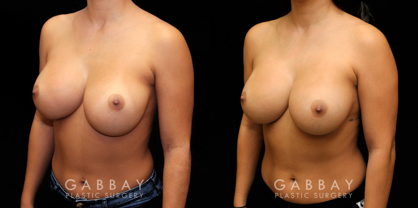 Patient 02 3/4th Left Side View Breast Revision Gabbay Plastic Surgery