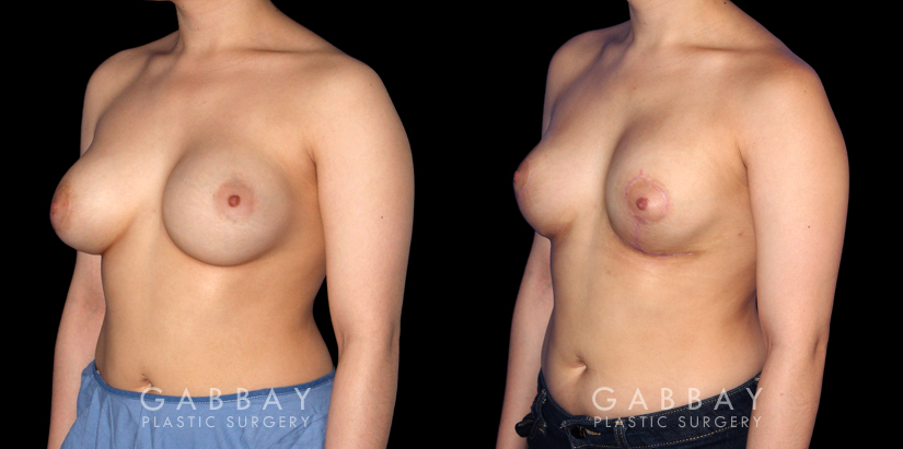 Patient 06 3/4th Left Side View Breast Augmentation-Remove and Replace Saline & Full Lift Gabbay Plastic Surgery