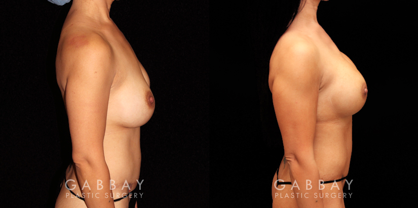 Patient 08 Right Side View R&R Silicone, Capsuloraphy, Pubis Lift, Scar Revision Gabbay Plastic Surgery