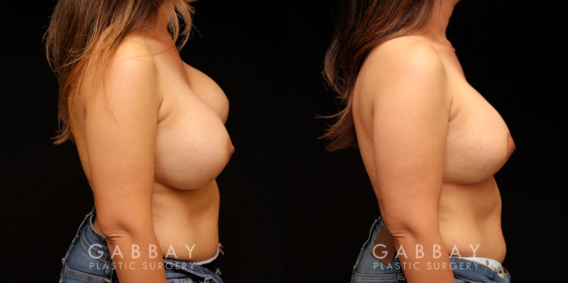 Patient 10 Right Side View Removal and Replacement with Lift Silicone Implants Gabbay Plastic Surgery