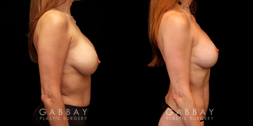 Patient 11 Right Side View Implant Removal and Lift Gabbay Plastic Surgery