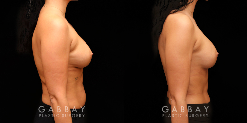 Patient 12 Right Side View Replacement and Removal One Side Mesh Gabbay Plastic Surgery