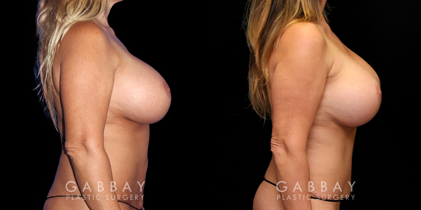 Patient 14 Right Side View Abdominoplasty Gabbay Plastic Surgery