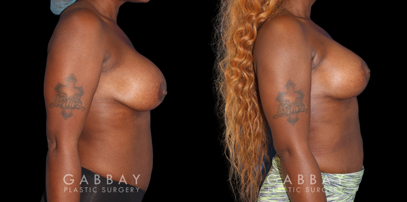 Patient 18 Right Side View Breast RevisionGabbay Plastic Surgery