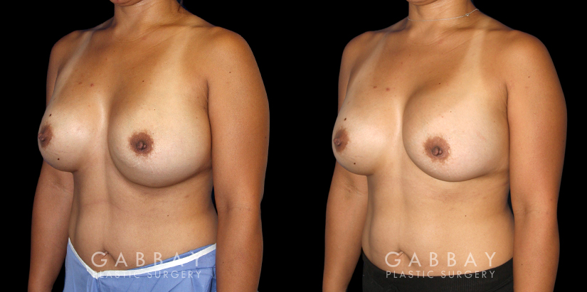 Patient 19 3/4th Left Side View Breast Revision Gabbay Plastic Surgery