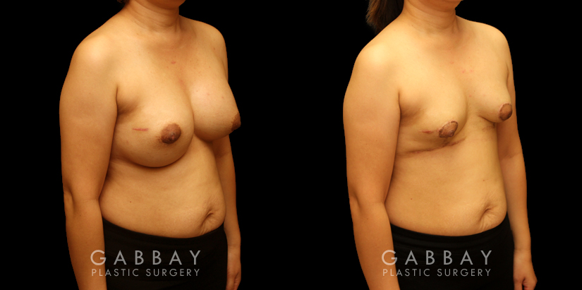 Patient 09 3/4th Right Side View Breast Implant Removal and Lift Gabbay Plastic Surgery