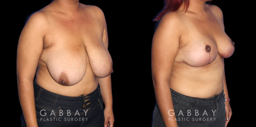 Patient 01 3/4th Right Side View Breast Mastopexy Gabbay Plastic Surgery