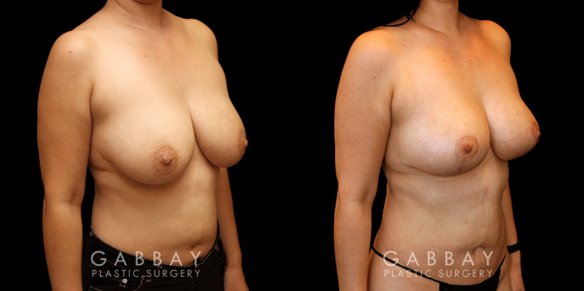 Patient 04 3/4th Right Side View Breast Lift and Auto Aug Gabbay Plastic Surgery
