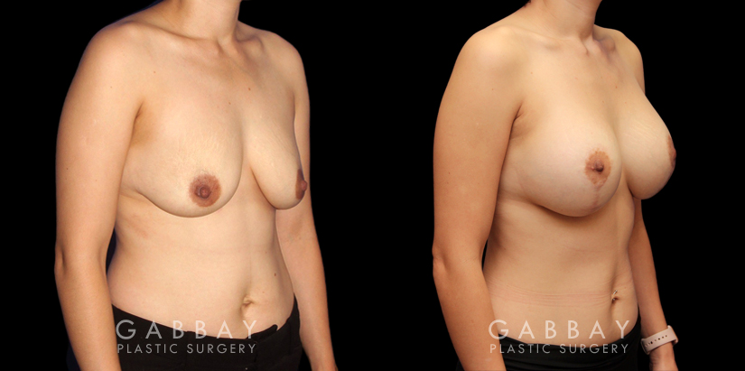 Patient 08 3/4th Right Side View Scar Revision to Breasts Gabbay Plastic Surgery
