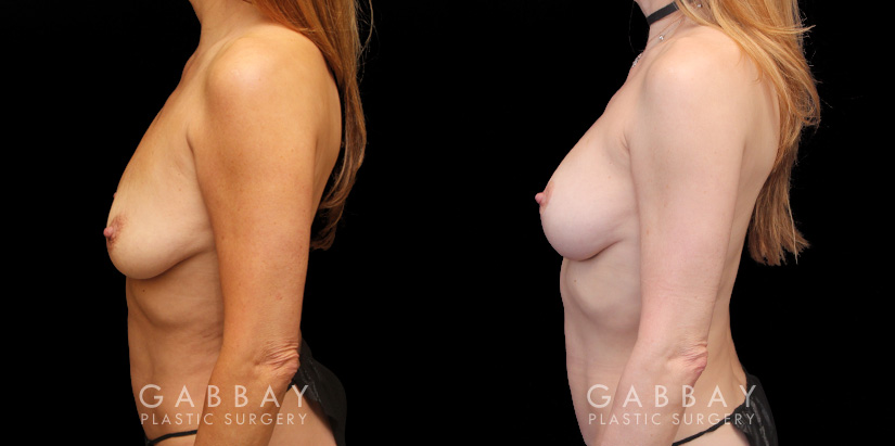 Patient 01 Left Side View Implant Removal and lift Gabbay Plastic Surgery