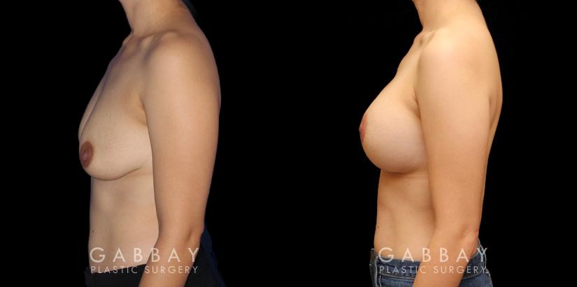 Patient 02 Left Side View Augpexy Gabbay Plastic Surgery