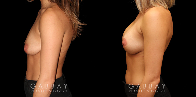 Patient 03 Left Side View Mastopexy with Breast Augmentation Gabbay Plastic Surgery