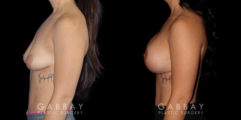 Patient 04 Left Side View Breast Augmentation w/ Mastopexy - Silicone Gabbay Plastic Surgery
