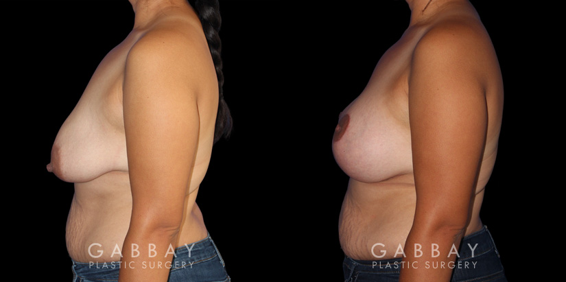 Patient 06 Left Side View Breast Augmentation - Silicone, Mastopexy Gabbay Plastic Surgery