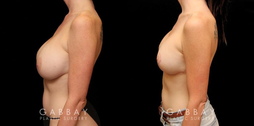 Patient 10 Left Side View Augpexy Gabbay Plastic Surgery