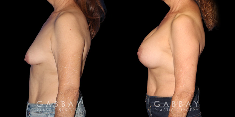 Patient 16 Left Side View Breast Augmentation w/ Mastopexy - Silicone Gabbay Plastic Surgery