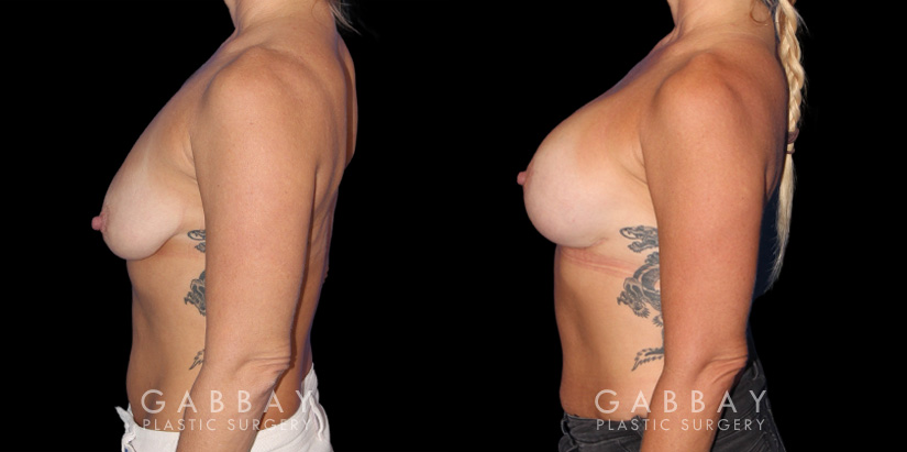 Patient 17 Left Side View Wise Mastopexy with Silicone Breast Implants Gabbay Plastic Surgery