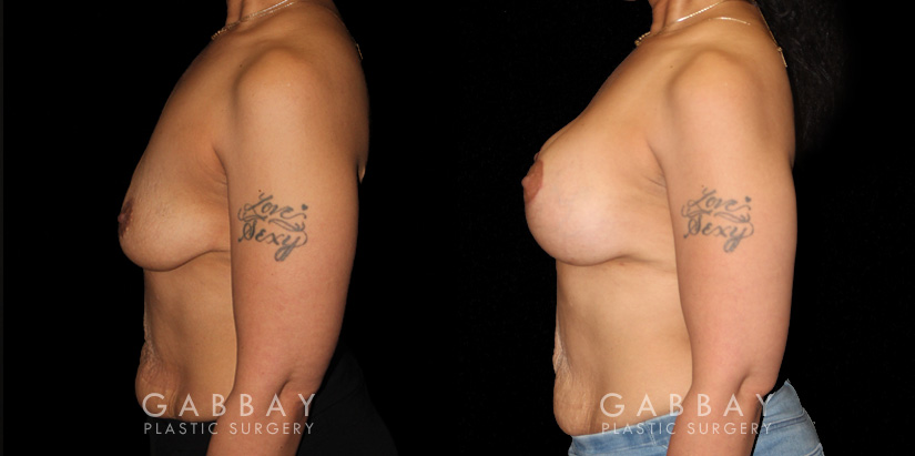 Patient 18 Left Side View Breast Augmentation - Silicone & Lift Gabbay Plastic Surgery