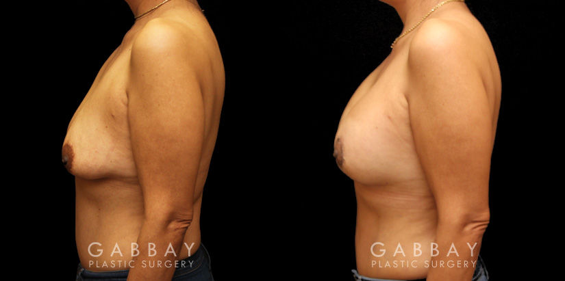 Patient 19 Left Side View Breast Aug/Pexy Gabbay Plastic Surgery