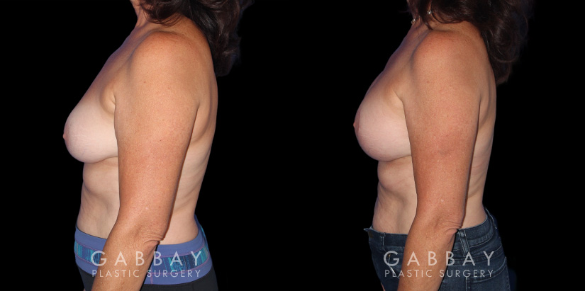 Patient 22 Left Side View R&R + Breast Lift Gabbay Plastic Surgery