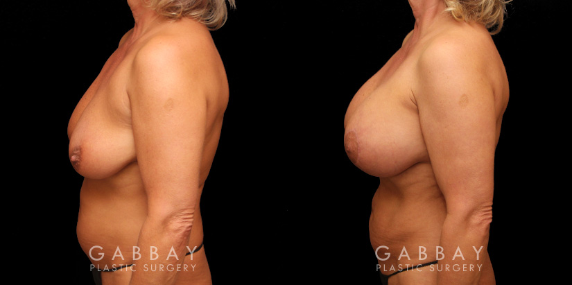 Patient 23 Left Side View Breast Aug/Pexy with Liposcution and J-plasma to the Full Abdomen and Upper Back Bra Roll Gabbay Plastic Surgery