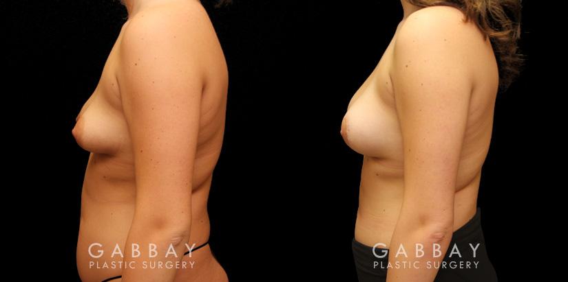 Patient 11 Left Side View Augpexy Gabbay Plastic Surgery