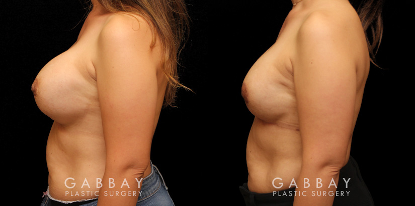 Patient 12 Left Side View Augpexy Gabbay Plastic Surgery
