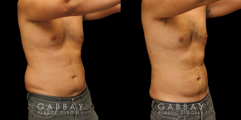 Patient 01 3/4th Right Side View Lipo Male Gabbay Plastic Surgery